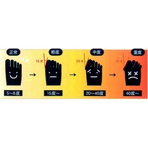 外反母趾予防 らくらくソックスM(2セット)ベージュ画像6