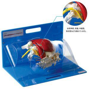坐骨神経刺鍼部位クリア3Dモデル/鍼灸模型 【鍼刺入可】 AM-3-0