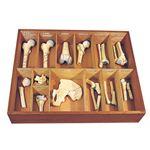 骨折種類模型 【13種】 実物大 木製ケース付き M-131-0
