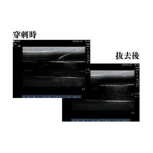 エコーガイドPICCトレーナー(静脈穿刺トレーニング/看護実習モデル) コンパクトサイズ 肘正中皮静脈対応 M-196-0